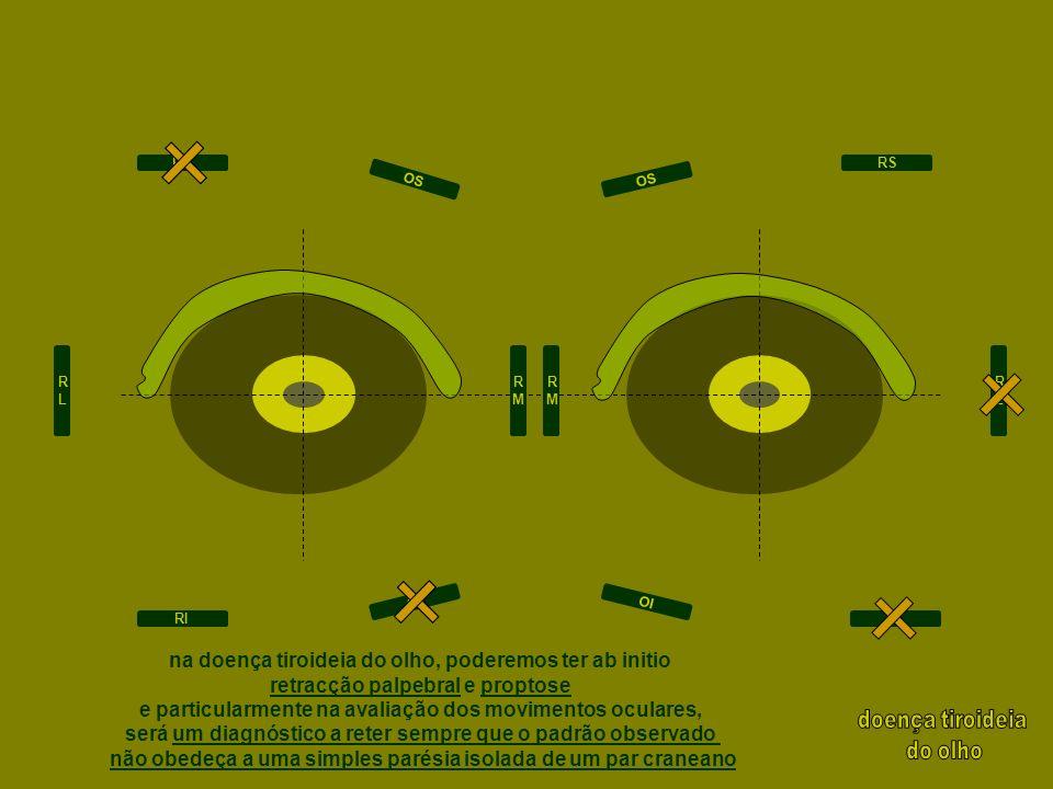 na doença tiroideia do olho, poderemos ter ab initio