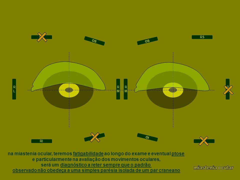 e particularmente na avaliação dos movimentos oculares,