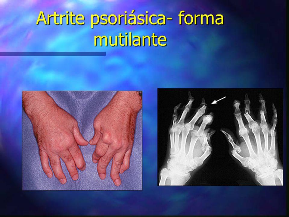 Artrite psoriásica- forma mutilante