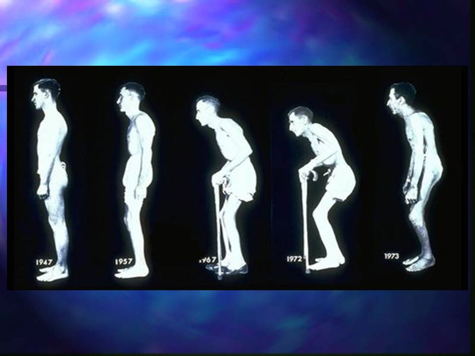 This classic image is a composite series of photographs of a patient with AS diagnosed in 1967. Disease progression includes gluteal atrophy, thoracic kyphosis, hip degeneration, and accompanying flexion contractures. This patient underwent multiple surgeries, such as hip arthroplasty, to improve his mobility, but considerable deformity persists.