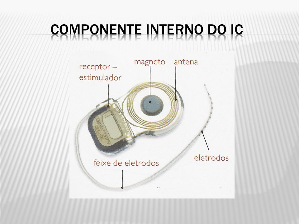 COMPONENTE INTERNO DO IC