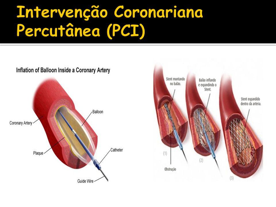 Intervenção Coronariana Percutânea (PCI)