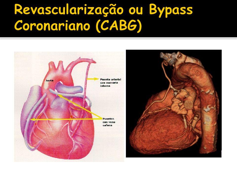 Revascularização ou Bypass Coronariano (CABG)