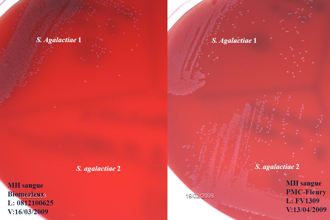 S. Agalactiae 1 S. Agalactiae 1. S. anginosus. S. agalactiae 2. S. agalactiae 2. MH sangue. PMC-Fleury.
