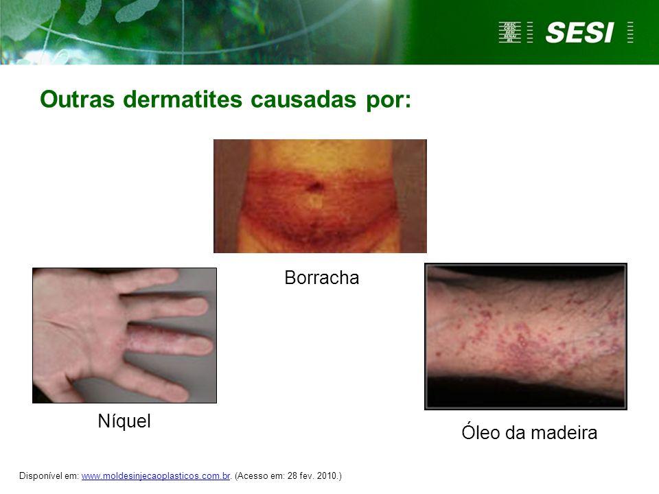 Outras dermatites causadas por: