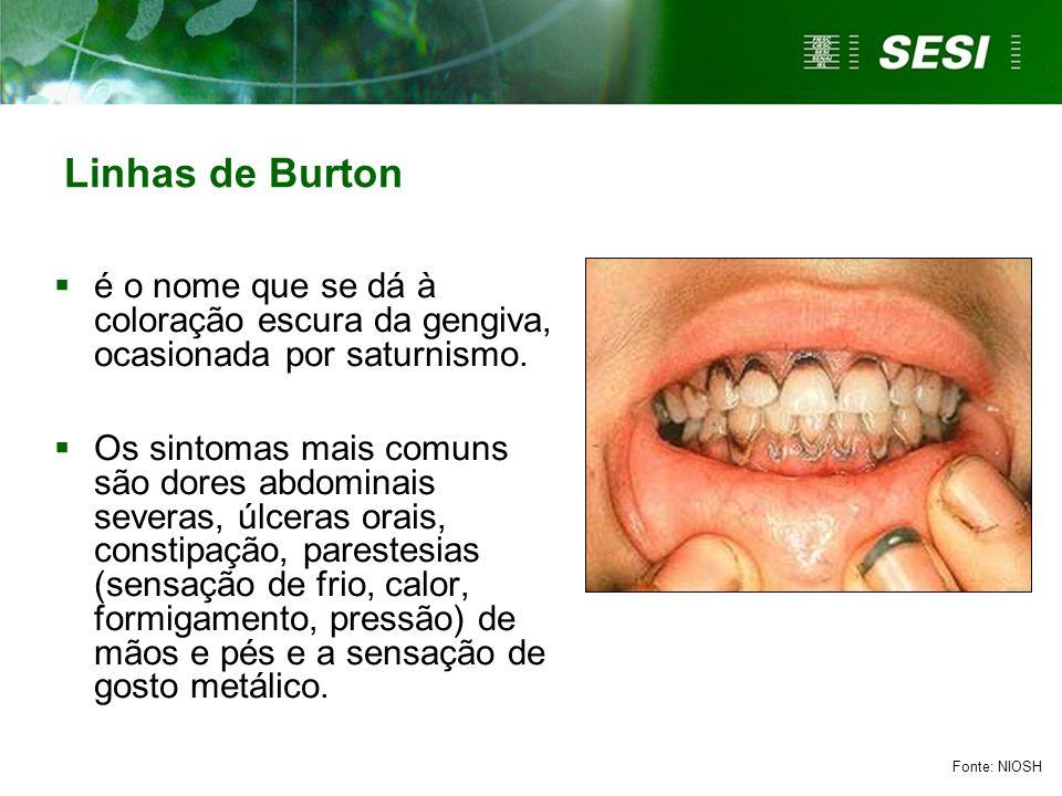 Linhas de Burton é o nome que se dá à coloração escura da gengiva, ocasionada por saturnismo.