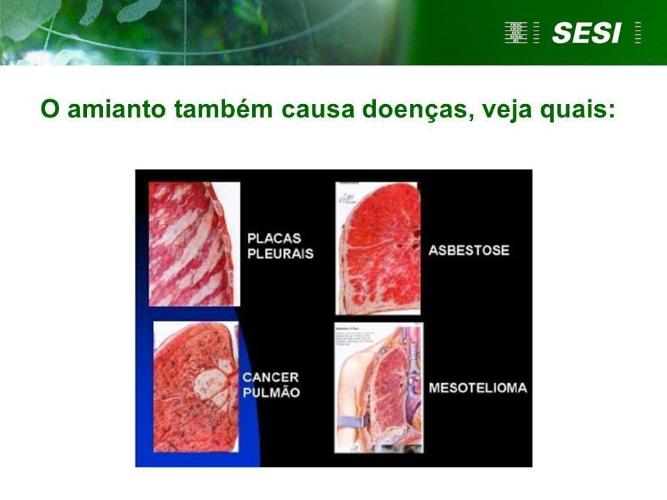 O amianto também causa doenças, veja quais: