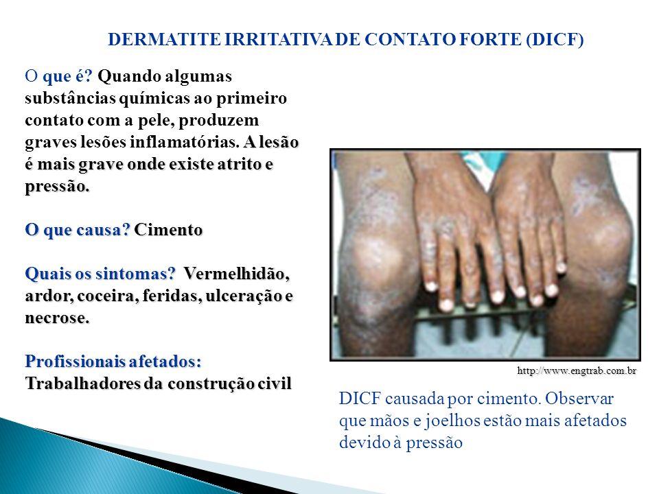 DERMATITE IRRITATIVA DE CONTATO FORTE (DICF)