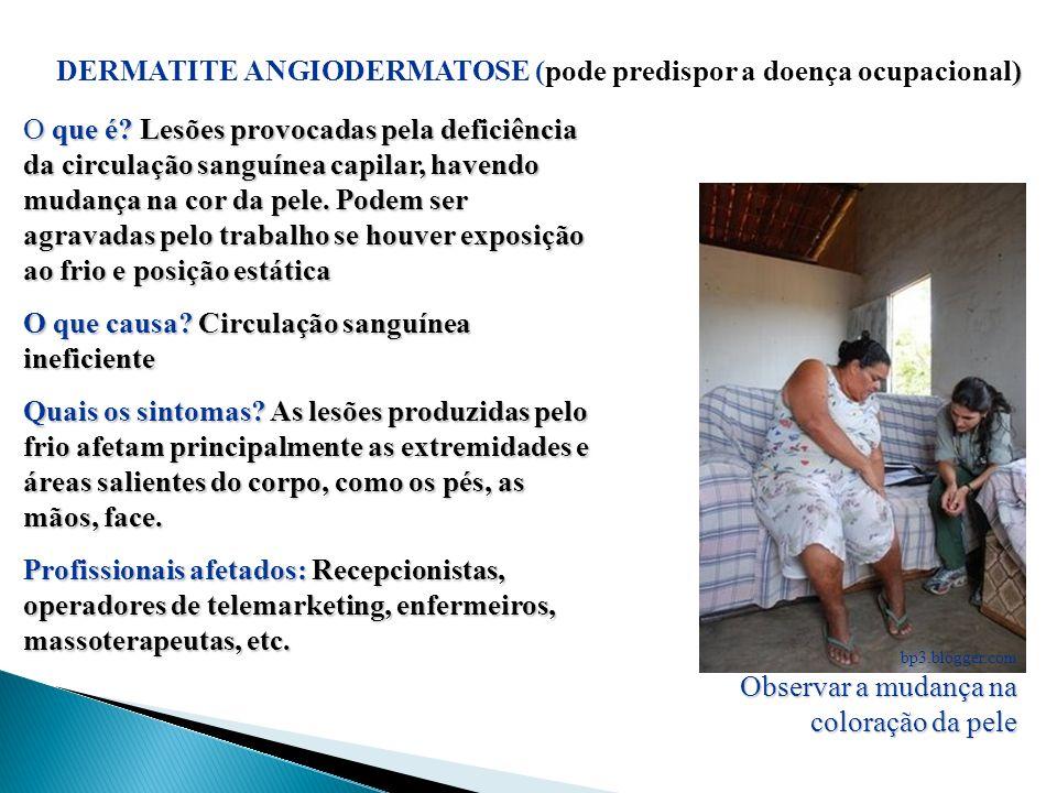 DERMATITE ANGIODERMATOSE (pode predispor a doença ocupacional)