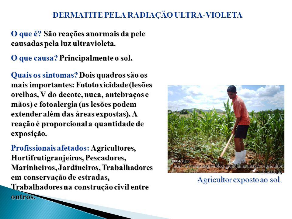 DERMATITE PELA RADIAÇÃO ULTRA-VIOLETA