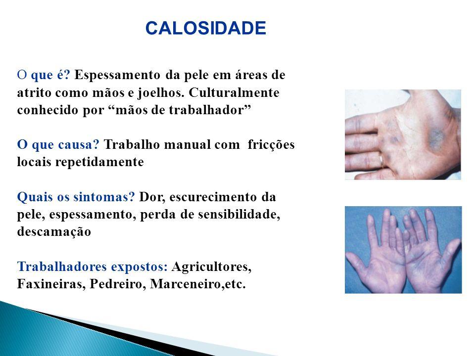 CALOSIDADE O que é Espessamento da pele em áreas de atrito como mãos e joelhos. Culturalmente conhecido por mãos de trabalhador