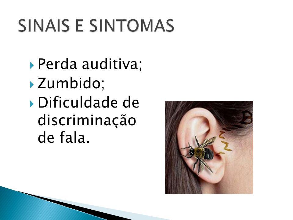 SINAIS E SINTOMAS Perda auditiva; Zumbido;