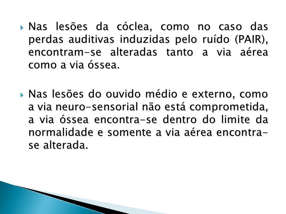 Nas lesões da cóclea, como no caso das perdas auditivas induzidas pelo ruído (PAIR), encontram-se alteradas tanto a via aérea como a via óssea.