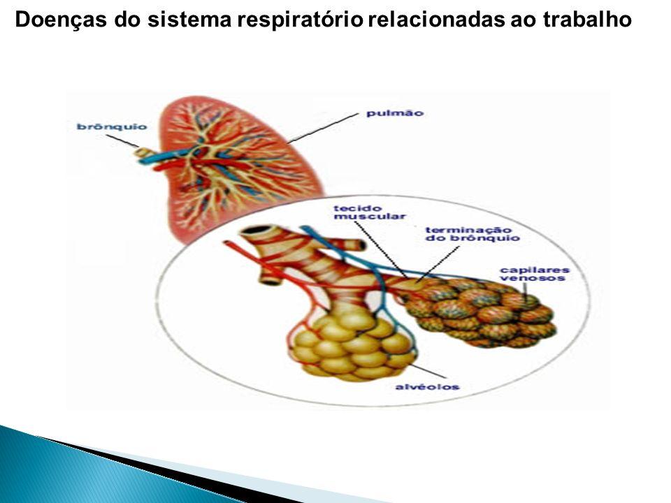 Doenças do sistema respiratório relacionadas ao trabalho