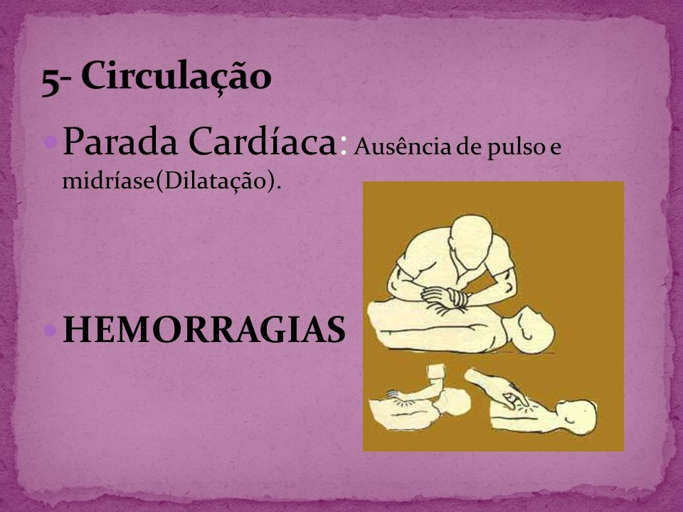 Parada Cardíaca: Ausência de pulso e midríase(Dilatação).