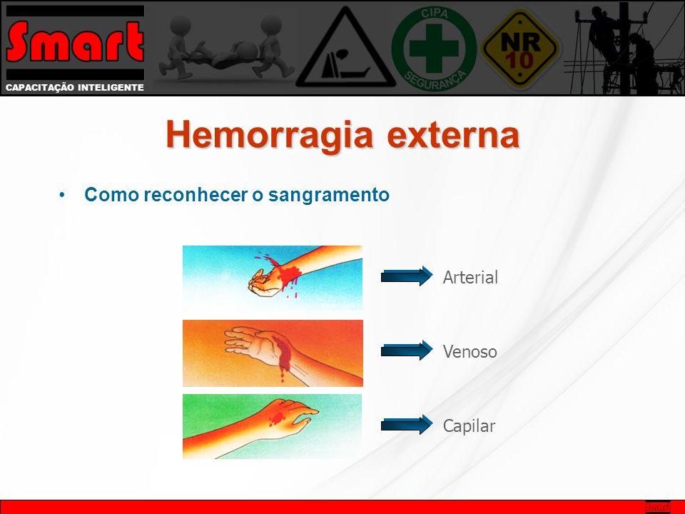 Hemorragia externa Como reconhecer o sangramento Arterial Venoso