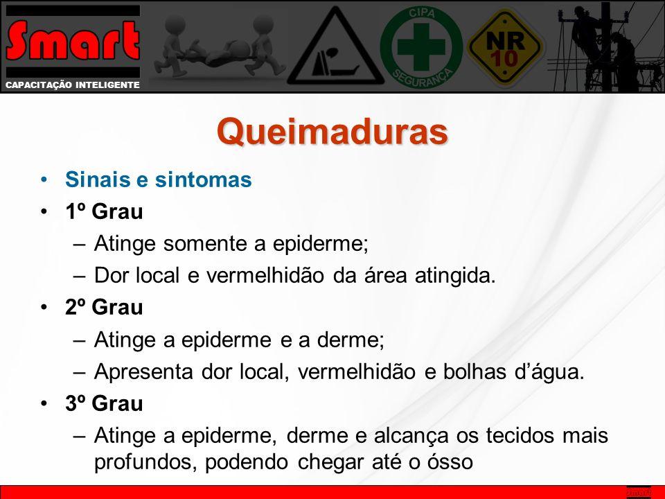 Queimaduras Sinais e sintomas 1º Grau Atinge somente a epiderme;