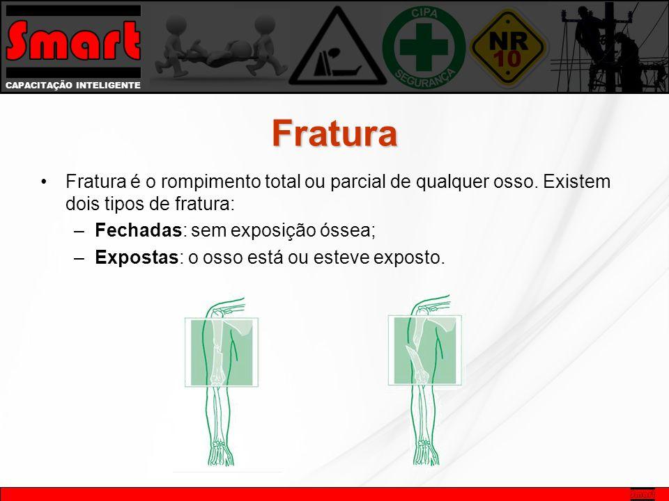 Fratura Fratura é o rompimento total ou parcial de qualquer osso. Existem dois tipos de fratura: Fechadas: sem exposição óssea;