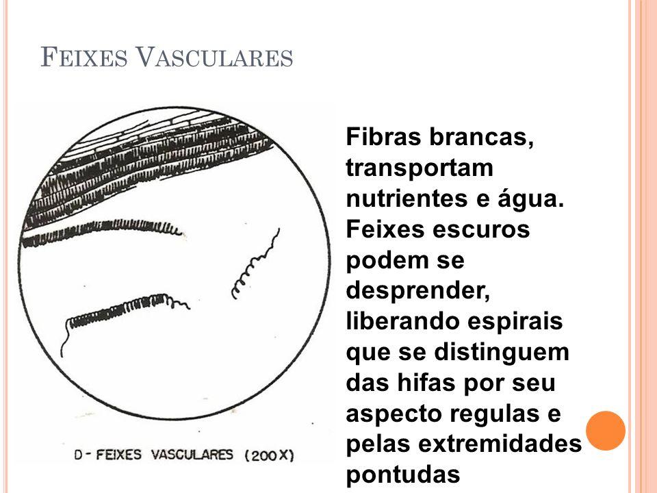 Feixes Vasculares