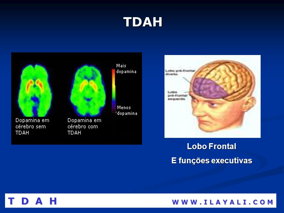 TDAH T D A H W W W . I L A Y A L I . C O M Lobo Frontal