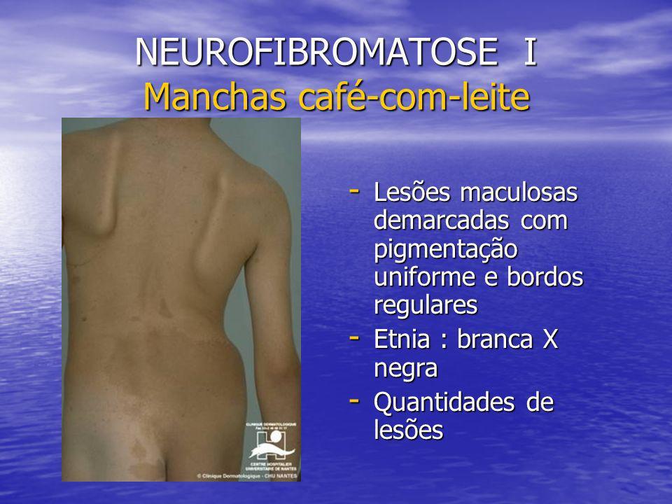NEUROFIBROMATOSE I Manchas café-com-leite