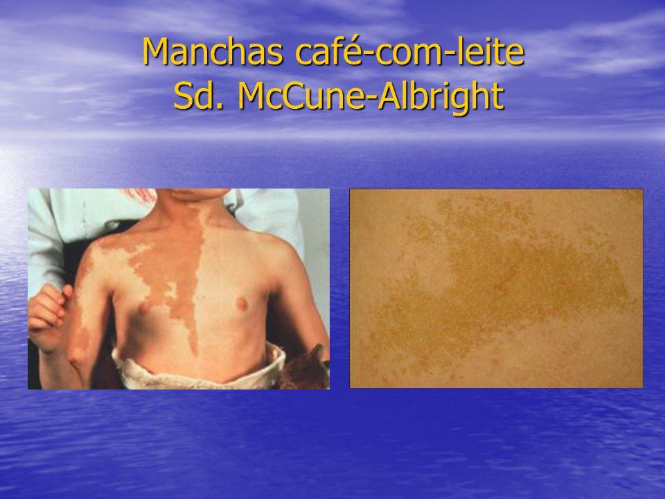 Manchas café-com-leite Sd. McCune-Albright