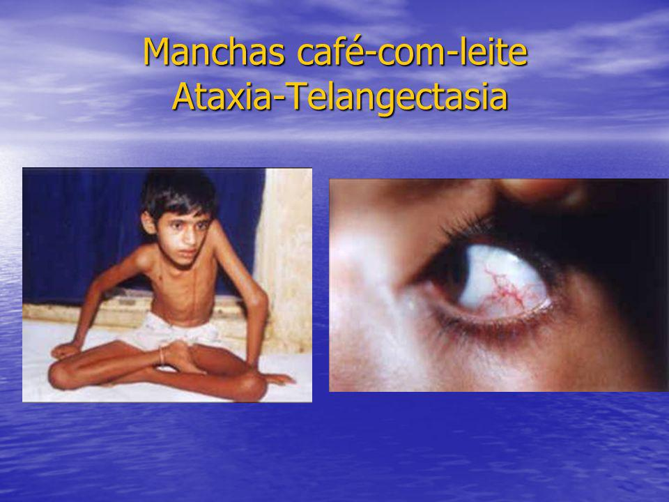 Manchas café-com-leite Ataxia-Telangectasia