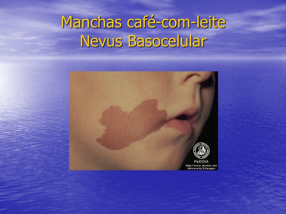Manchas café-com-leite Nevus Basocelular