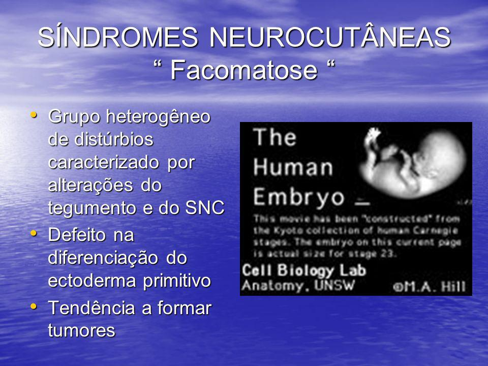 SÍNDROMES NEUROCUTÂNEAS Facomatose