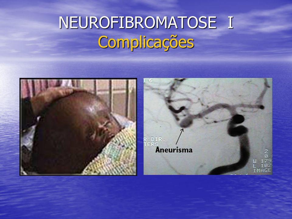 NEUROFIBROMATOSE I Complicações
