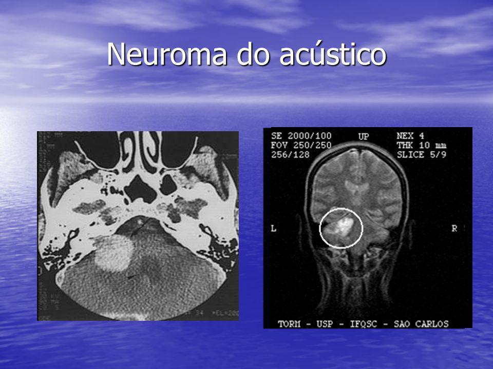 Neuroma do acústico