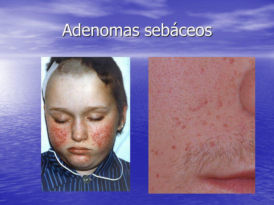 Adenomas sebáceos