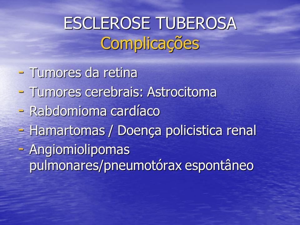 ESCLEROSE TUBEROSA Complicações