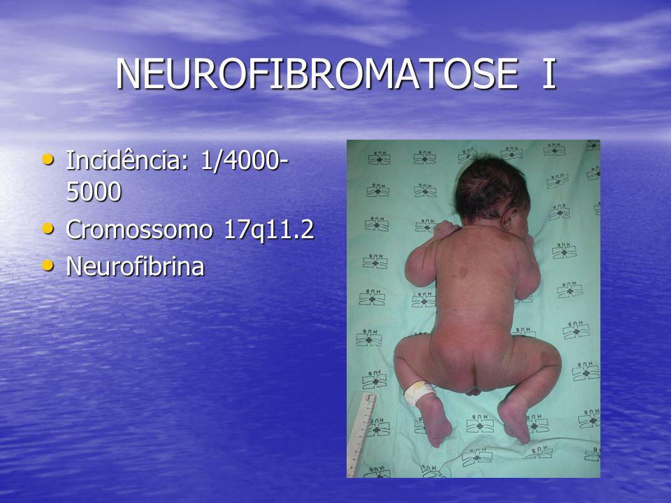 NEUROFIBROMATOSE I Incidência: 1/4000-5000 Cromossomo 17q11.2
