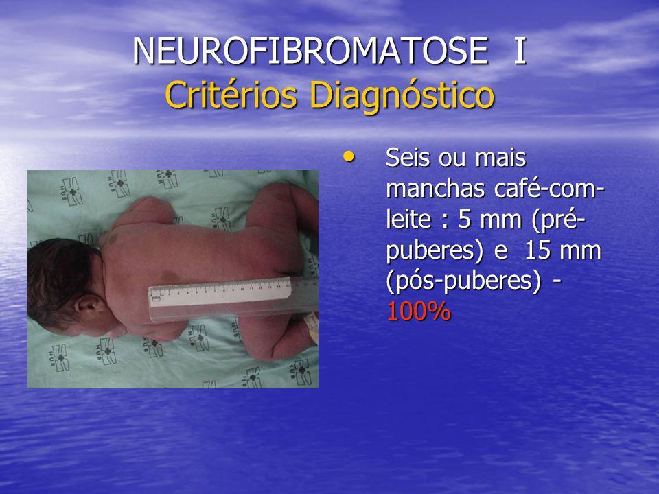 NEUROFIBROMATOSE I Critérios Diagnóstico