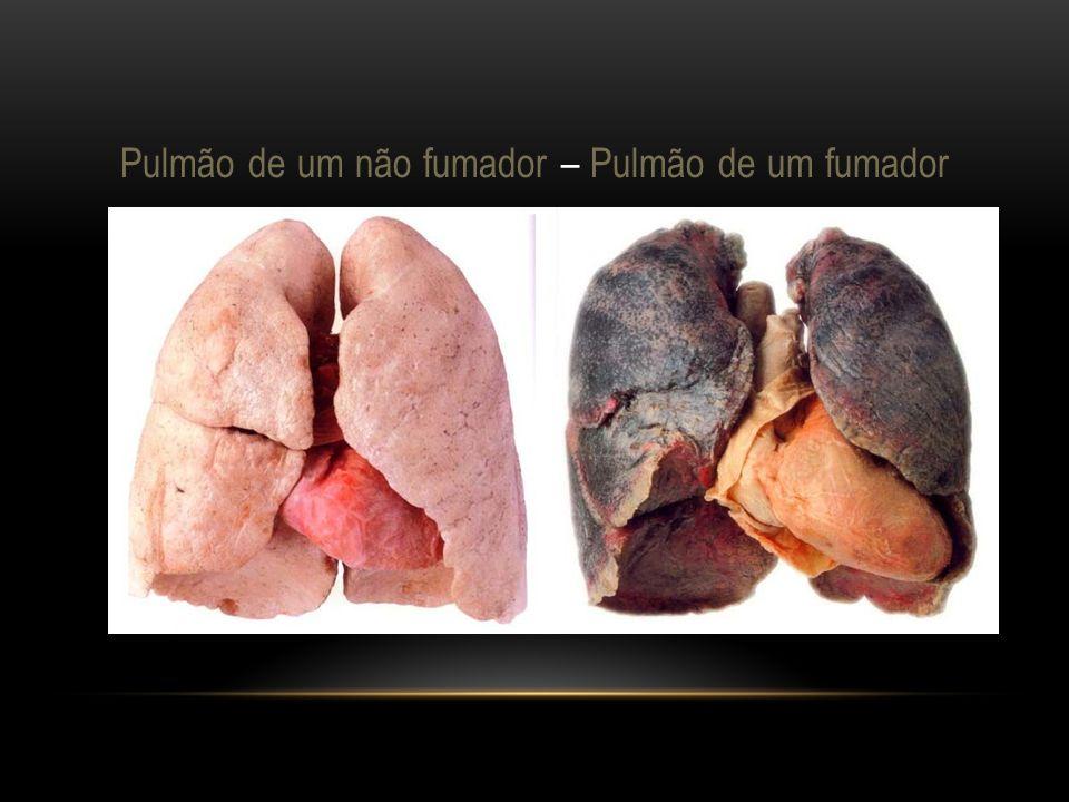Pulmão de um não fumador – Pulmão de um fumador
