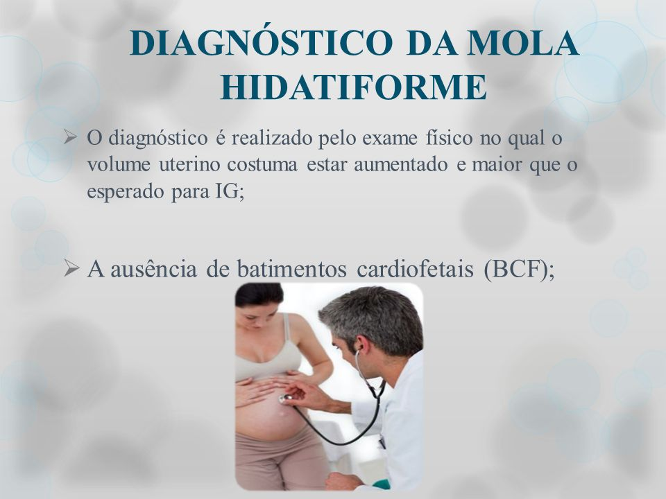 DIAGNÓSTICO DA MOLA HIDATIFORME