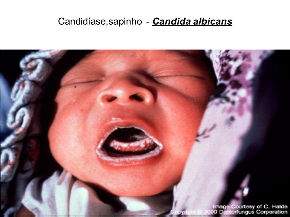 Candidíase,sapinho - Candida albicans