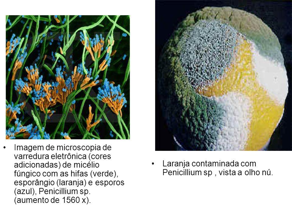 Imagem de microscopia de varredura eletrônica (cores adicionadas) de micélio fúngico com as hifas (verde), esporângio (laranja) e esporos (azul), Penicillium sp. (aumento de 1560 x).