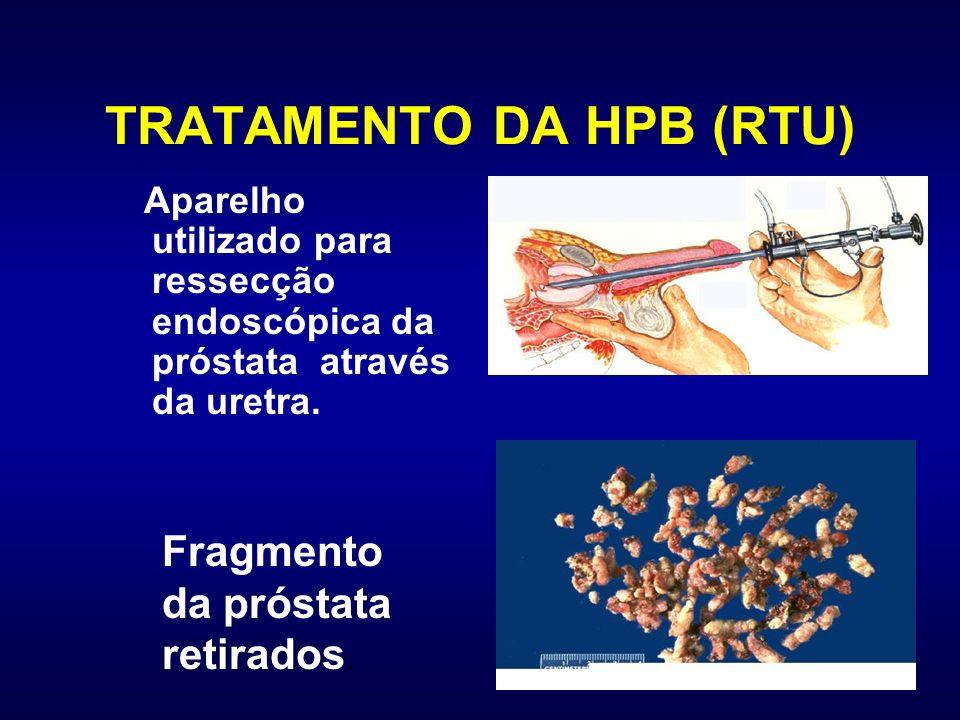 TRATAMENTO DA HPB (RTU)