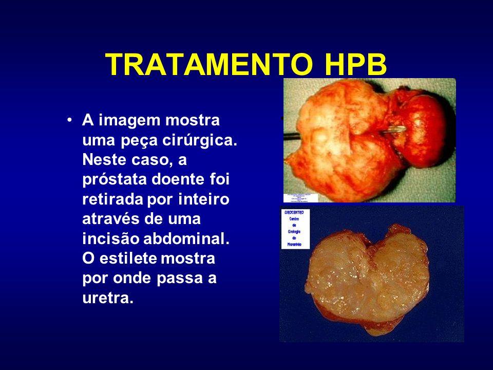 TRATAMENTO HPB