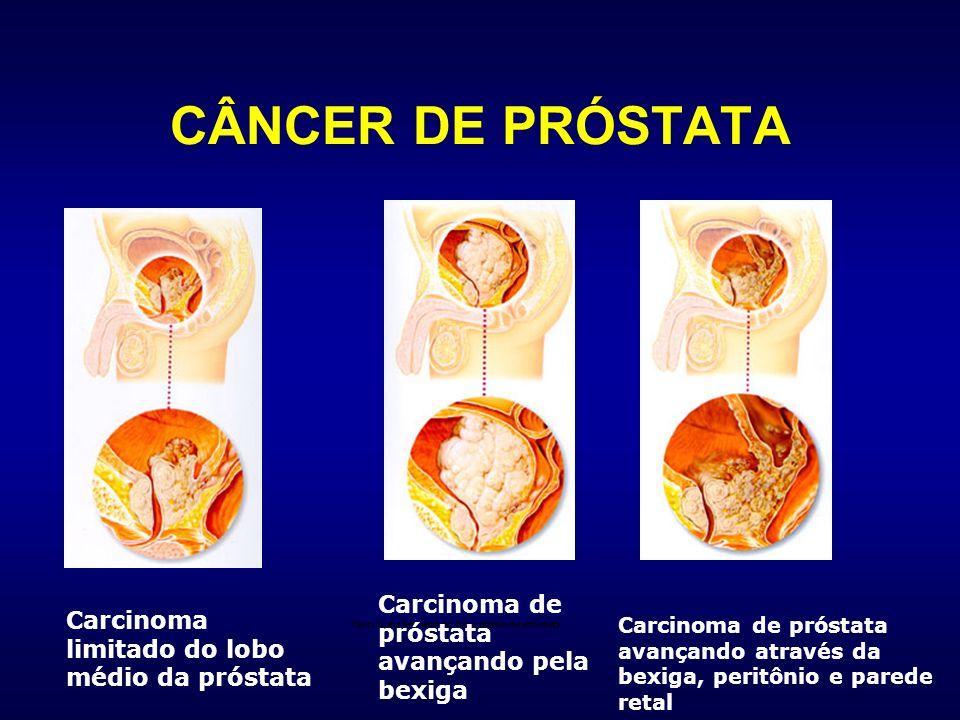 Carcinoma limitado do lobo médio da próstata