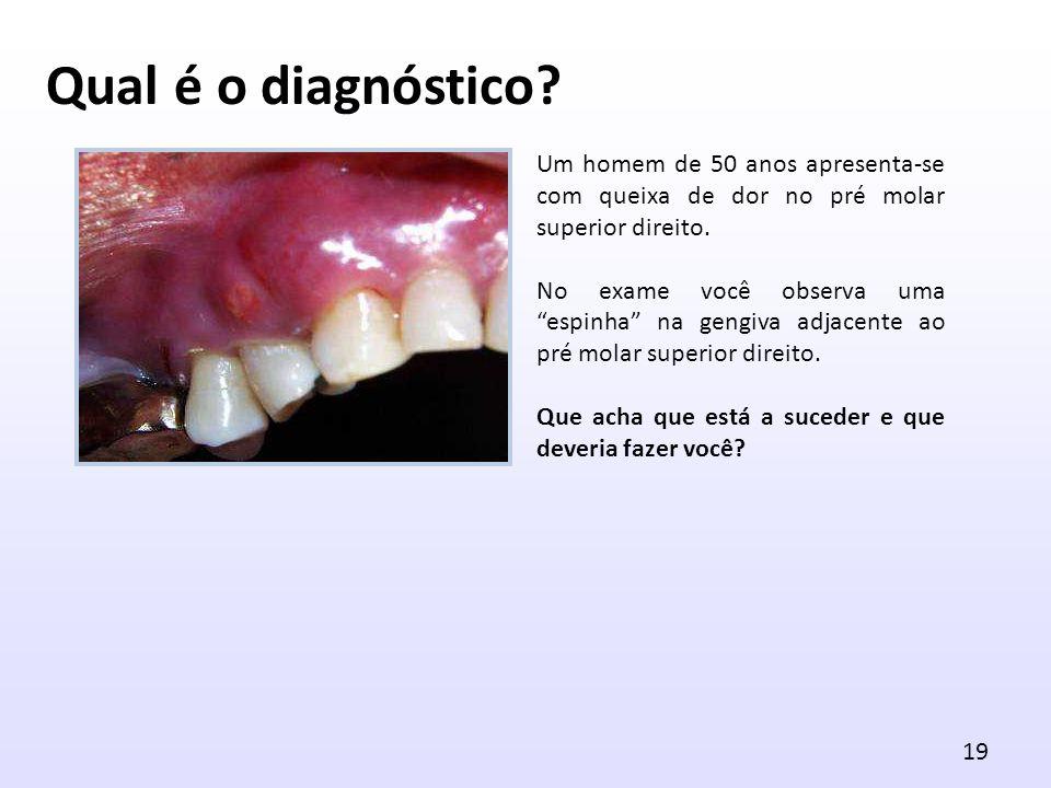 Qual é o diagnóstico Um homem de 50 anos apresenta-se com queixa de dor no pré molar superior direito.