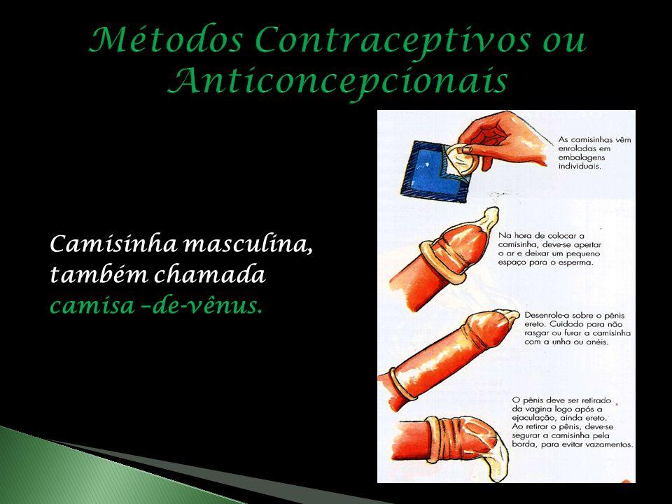 Métodos Contraceptivos ou Anticoncepcionais