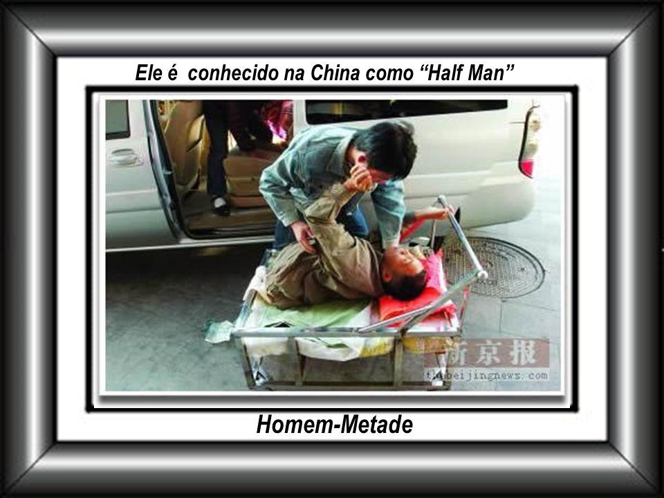 Ele é conhecido na China como Half Man