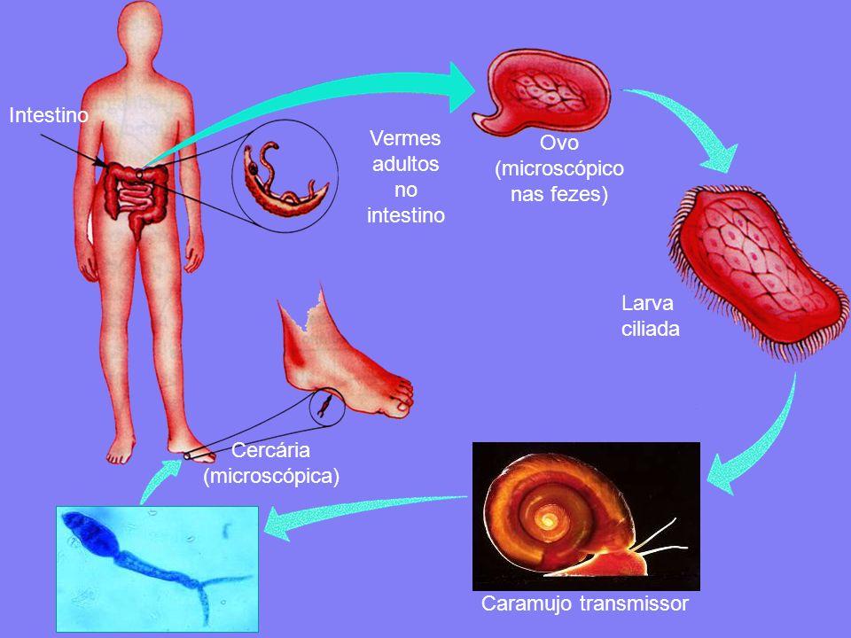 Vermes adultos no intestino Ovo (microscópico nas fezes)