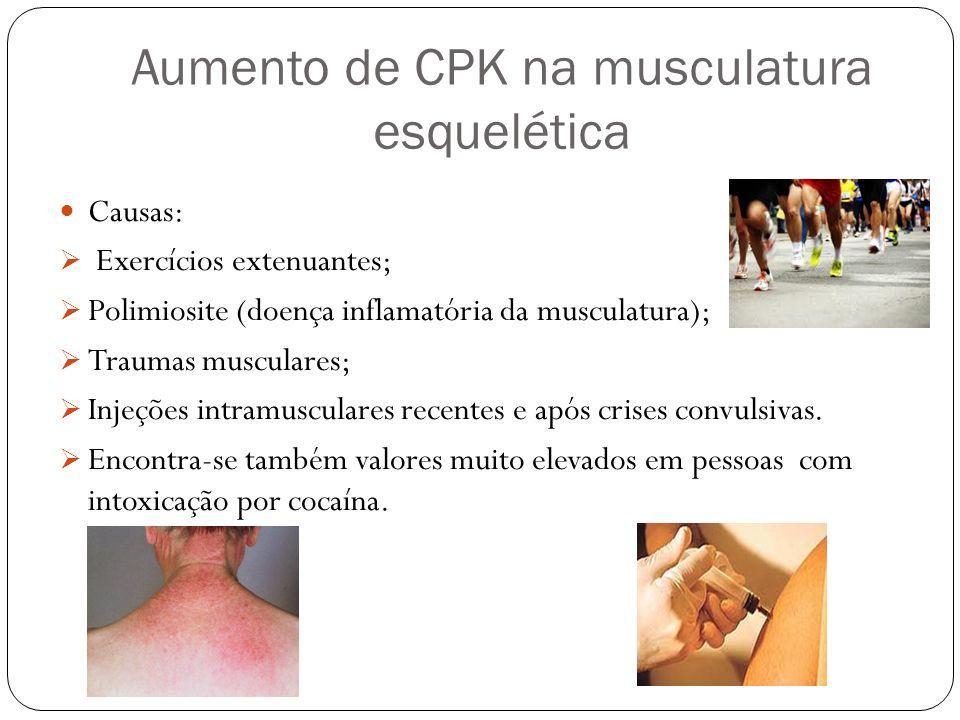 Aumento de CPK na musculatura esquelética