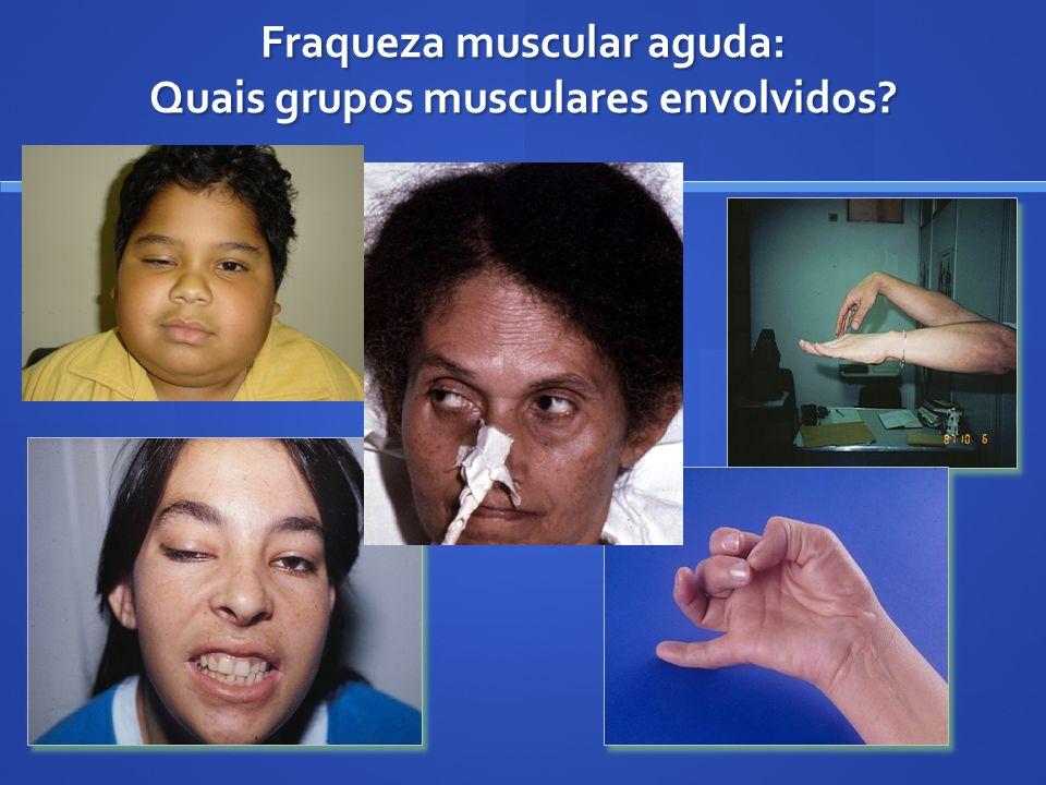 Fraqueza muscular aguda: Quais grupos musculares envolvidos