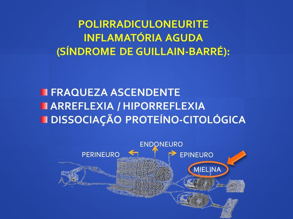 POLIRRADICULONEURITE INFLAMATÓRIA AGUDA (SÍNDROME DE GUILLAIN-BARRÉ):