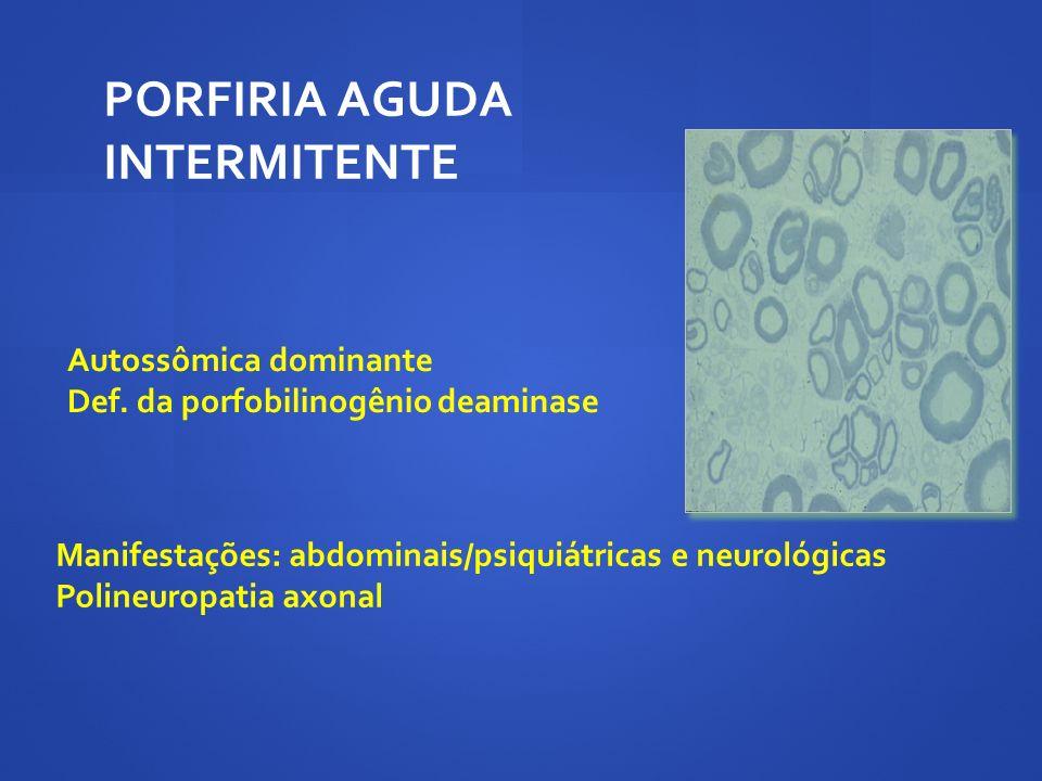PORFIRIA AGUDA INTERMITENTE
